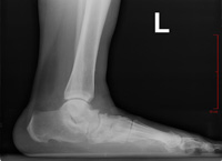 Painful Flatfoot Deformity