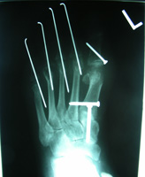 Post Op Radiographs